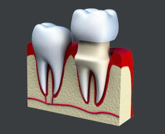 Kyle TX Dental Crowns