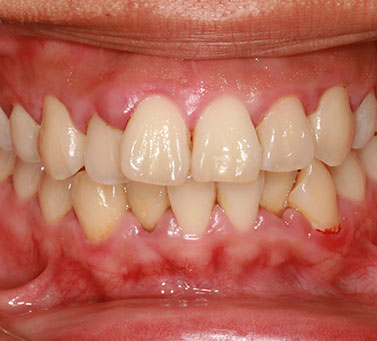 Gum Disease Symptoms