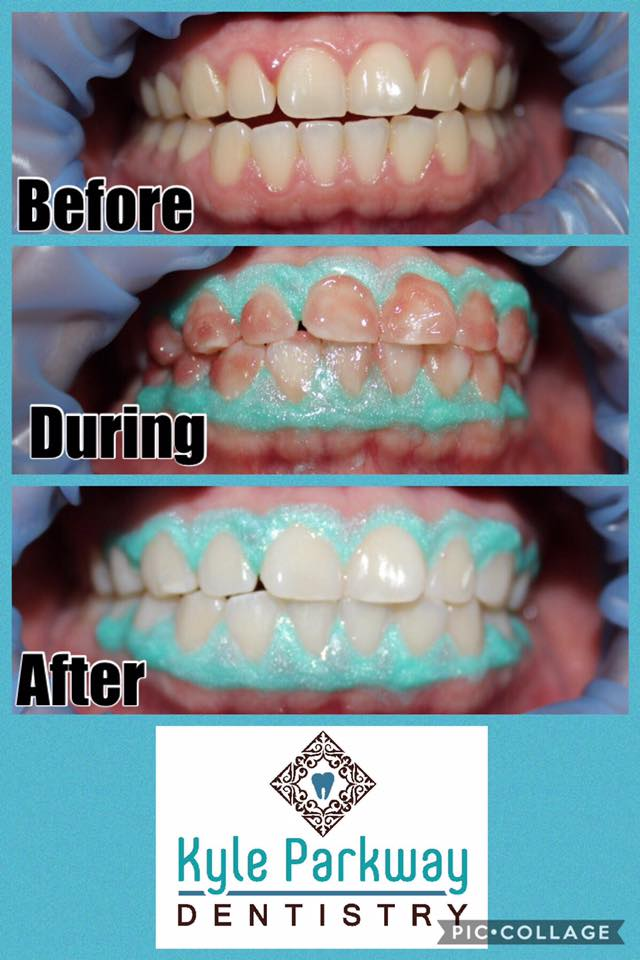 Kyle Buda Teeth Whitening Professional Whitening San Marcos