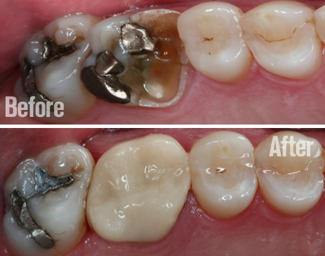 Before and after Crown