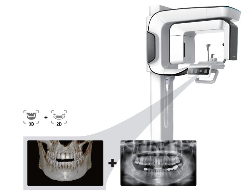 3D dental xray in Kyle, Buda TX